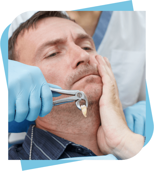 man holding his cheek after having a tooth extracted.